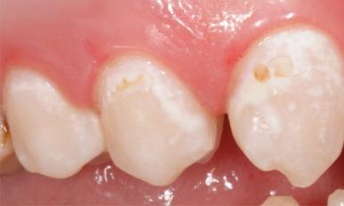 Настенные электрические зубные щетки